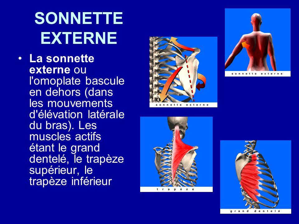 SONNETTE EXTERNE La sonnette externe ou l'omoplate bascule en dehors (dans les mouvements d'élévation latérale du bras). Les muscles actifs étant le g