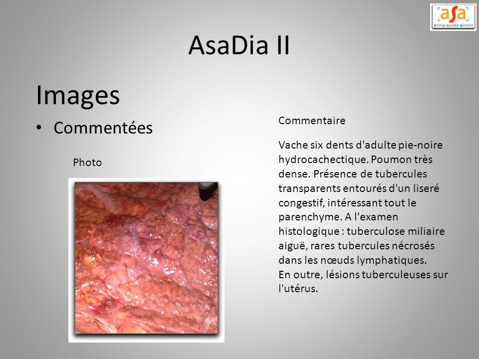 AsaDia II Images Commentées Vache six dents d'adulte pie-noire hydrocachectique. Poumon très dense. Présence de tubercules transparents entourés d'un