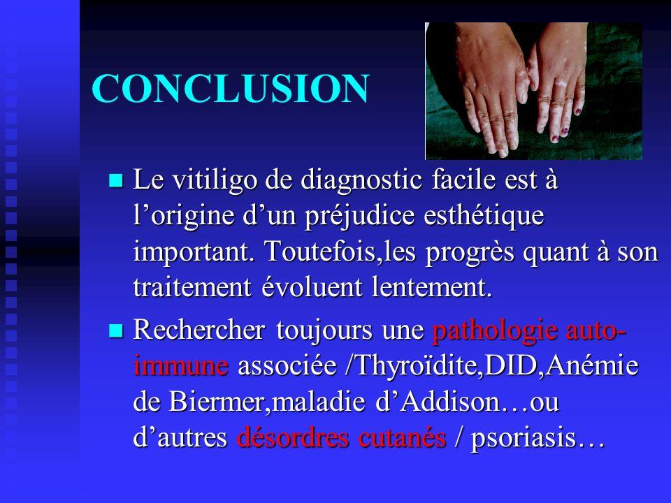 CONCLUSION Le vitiligo de diagnostic facile est à lorigine dun préjudice esthétique important. Toutefois,les progrès quant à son traitement évoluent l