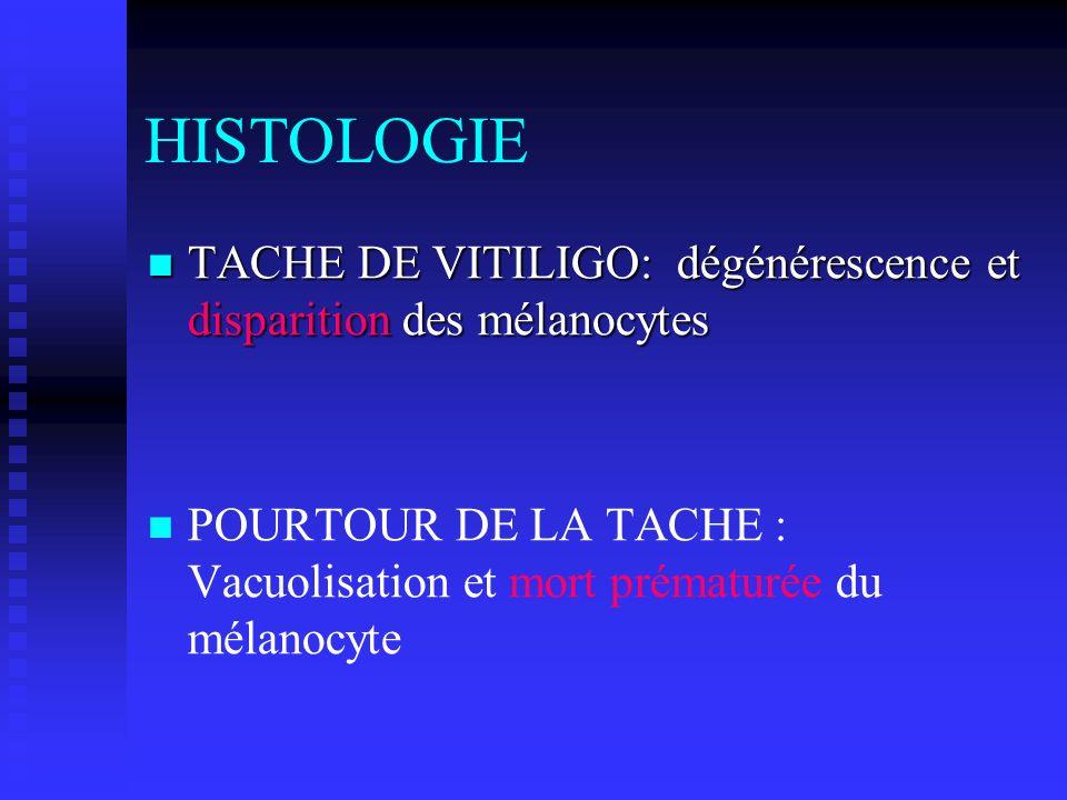 HISTOLOGIE TACHE DE VITILIGO: dégénérescence et disparition des mélanocytes TACHE DE VITILIGO: dégénérescence et disparition des mélanocytes POURTOUR