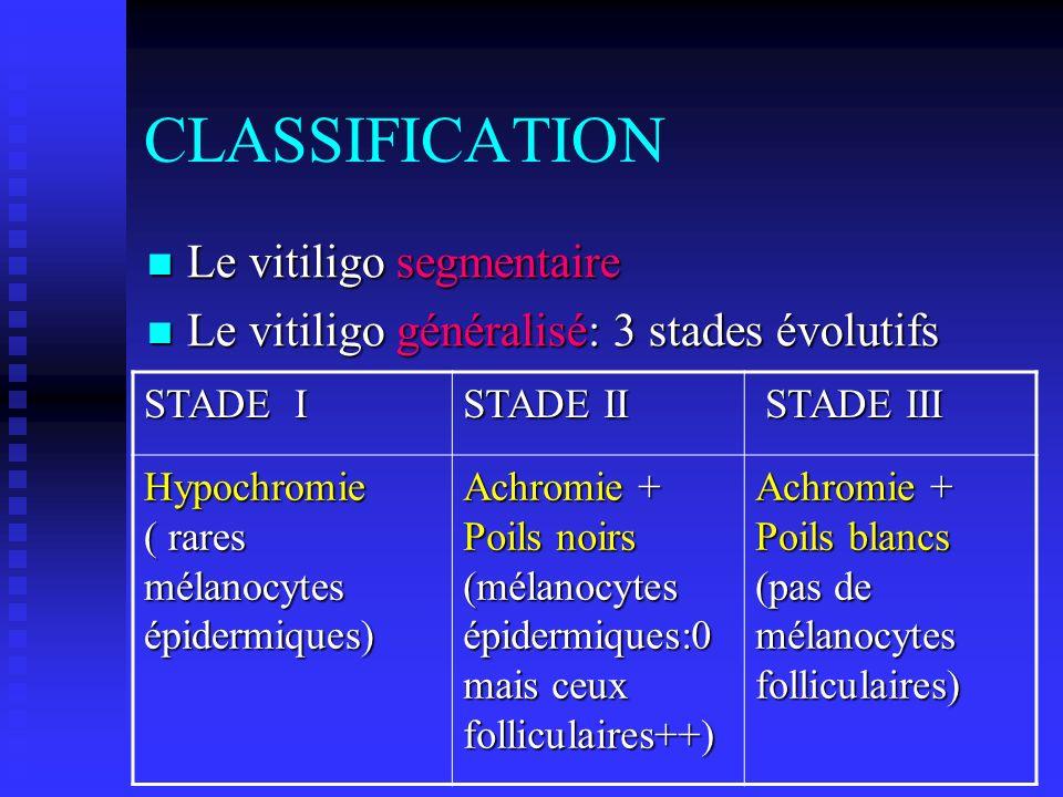CLASSIFICATION Le vitiligo segmentaire Le vitiligo segmentaire Le vitiligo généralisé: 3 stades évolutifs Le vitiligo généralisé: 3 stades évolutifs S