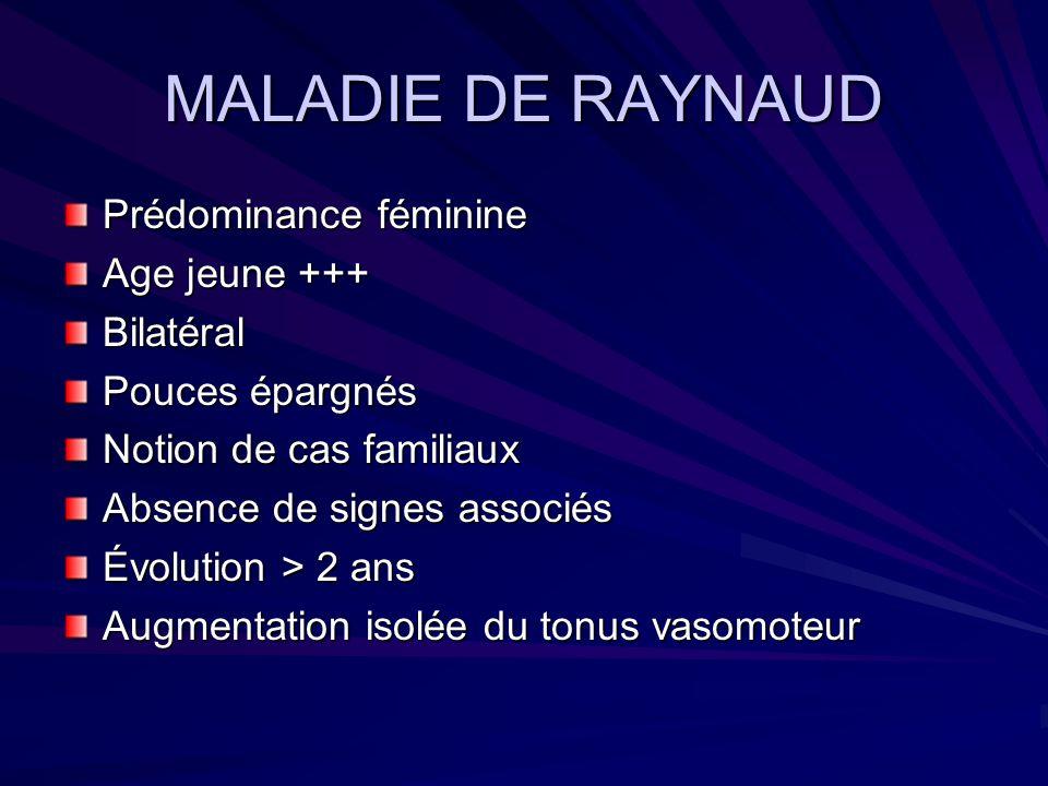 MALADIE DE RAYNAUD Prédominance féminine Age jeune +++ Bilatéral Pouces épargnés Notion de cas familiaux Absence de signes associés Évolution > 2 ans