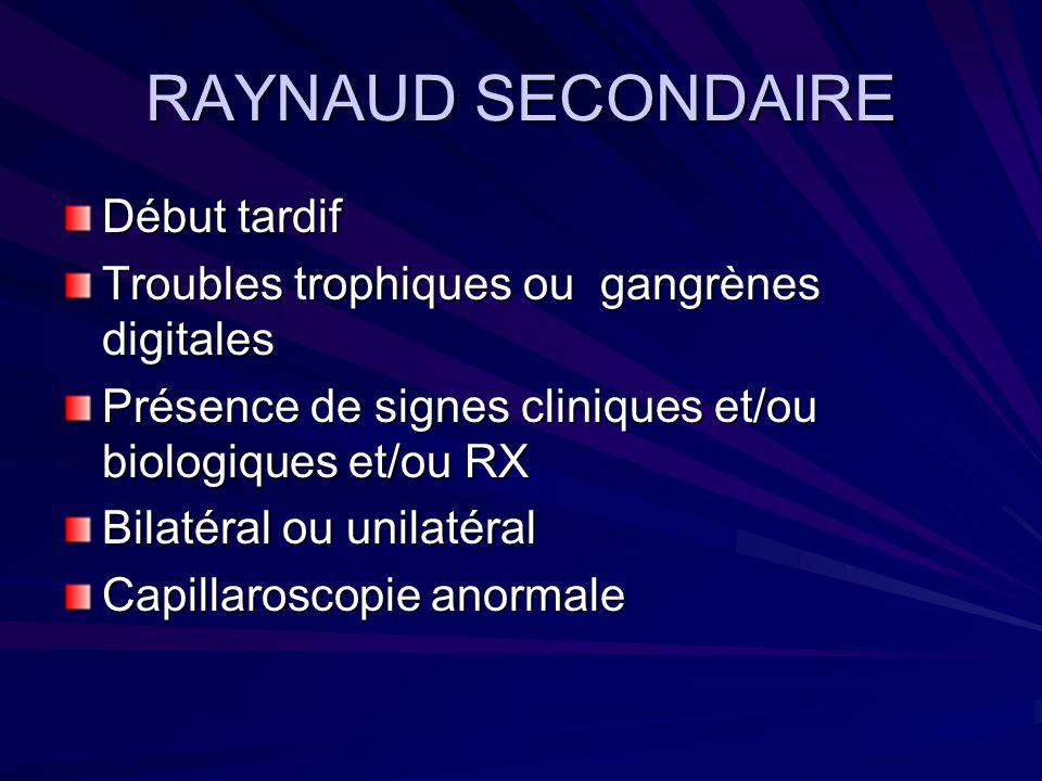 RAYNAUD SECONDAIRE Début tardif Troubles trophiques ou gangrènes digitales Présence de signes cliniques et/ou biologiques et/ou RX Bilatéral ou unilat
