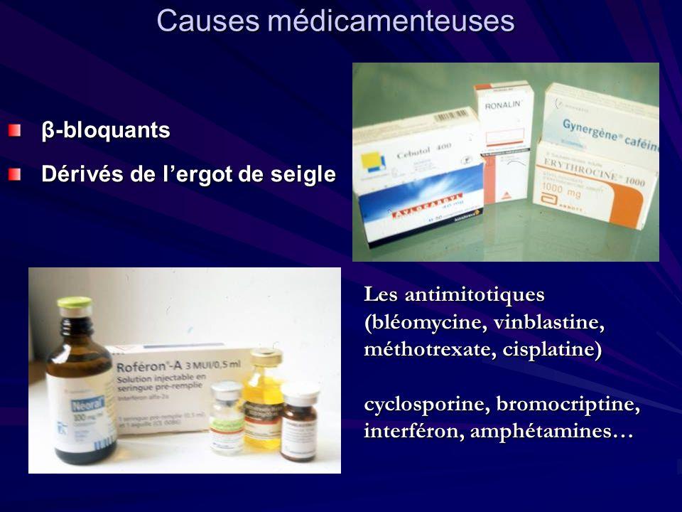 Causes médicamenteuses β-bloquants Dérivés de lergot de seigle Les antimitotiques (bléomycine, vinblastine, méthotrexate, cisplatine) cyclosporine, br
