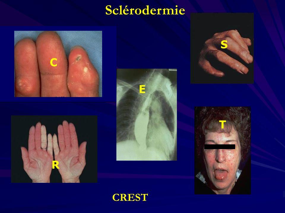 R E S T C Sclérodermie CREST