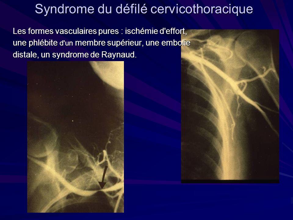 Syndrome du défilé cervicothoracique Les formes vasculaires pures : ischémie d'effort, une phlébite d'un membre supérieur, une embolie distale, un syn