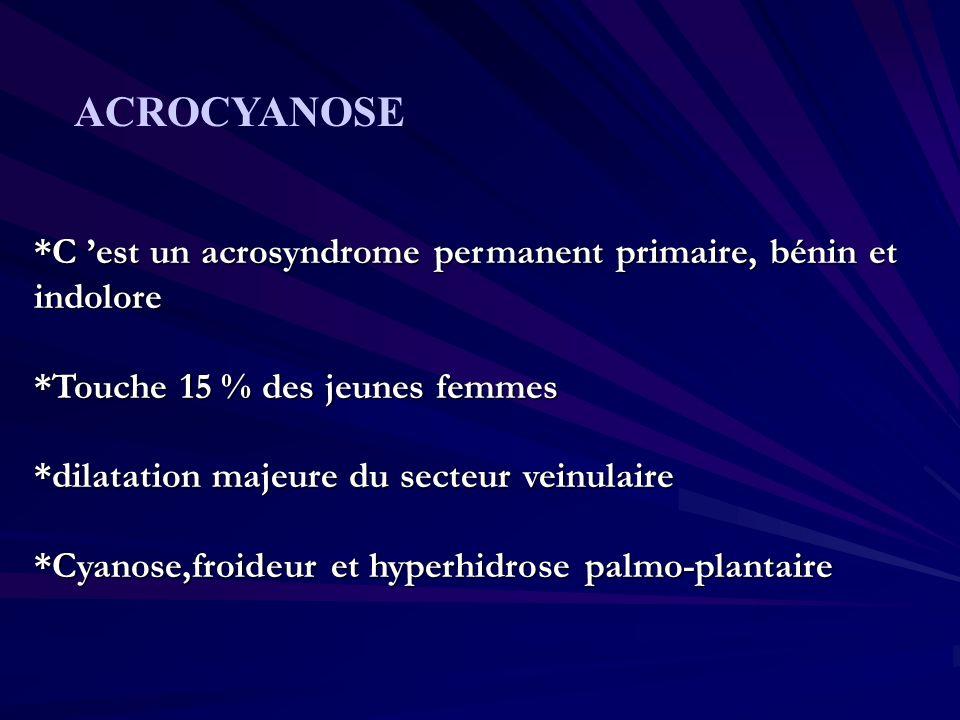 *C est un acrosyndrome permanent primaire, bénin et indolore *Touche 15 % des jeunes femmes *dilatation majeure du secteur veinulaire *Cyanose,froideu