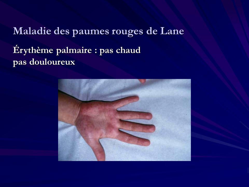 Maladie des paumes rouges de Lane Érythème palmaire : pas chaud pas douloureux