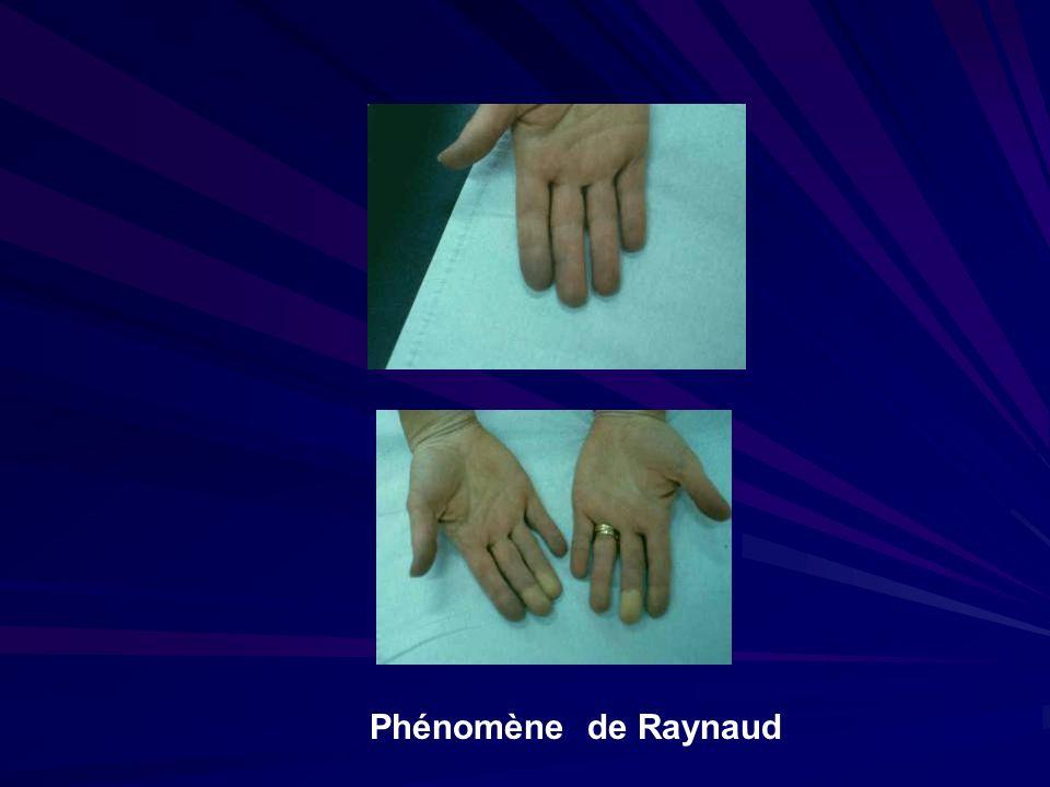 Syndrome du défilé cervicothoracique Les formes vasculaires pures : ischémie d effort, une phlébite d un membre supérieur, une embolie distale, un syndrome de Raynaud.