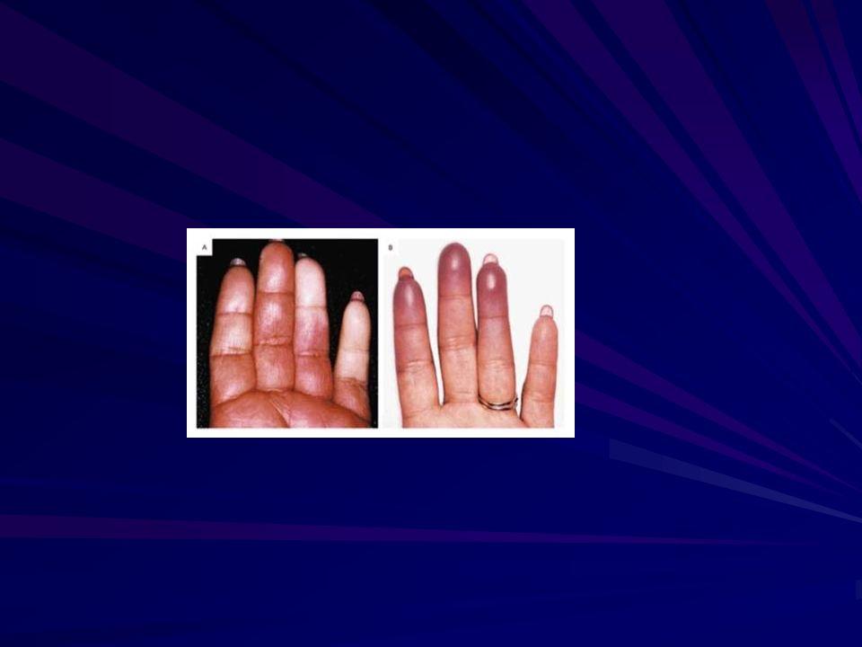 AUTRESMyxoedèmeHashimotoAcromégalieFibromyalgie Tumeur glomique Infections : parvovirus B19 SD canal carpien