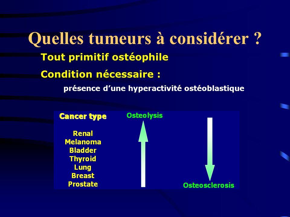 Quelles tumeurs à considérer ? Tout primitif ostéophile Condition nécessaire : présence dune hyperactivité ostéoblastique