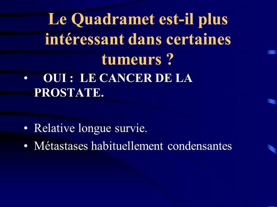 Le Quadramet est-il plus intéressant dans certaines tumeurs ? OUI : LE CANCER DE LA PROSTATE. Relative longue survie. Métastases habituellement conden