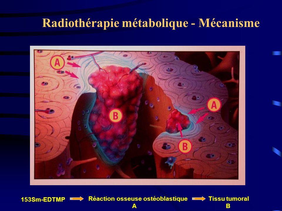 Radiothérapie métabolique - Mécanisme 153Sm-EDTMP Réaction osseuse ostéoblastique A Tissu tumoral B