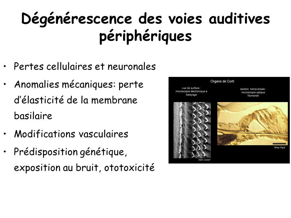 Dégénérescence des voies auditives périphériques Pertes cellulaires et neuronales Anomalies mécaniques: perte délasticité de la membrane basilaire Mod
