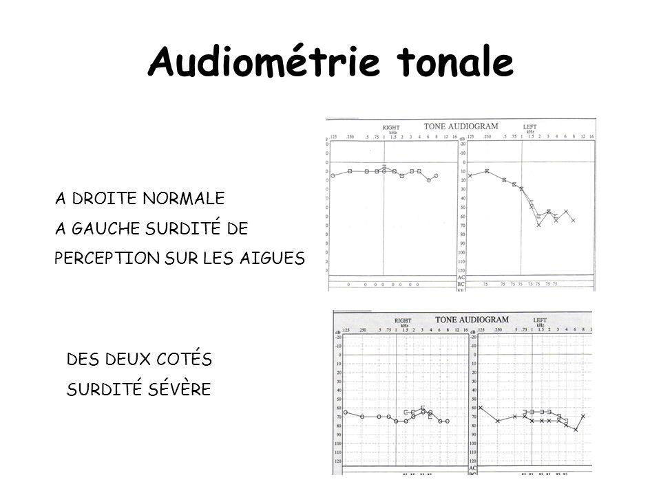Audiométrie tonale A DROITE NORMALE A GAUCHE SURDITÉ DE PERCEPTION SUR LES AIGUES DES DEUX COTÉS SURDITÉ SÉVÈRE