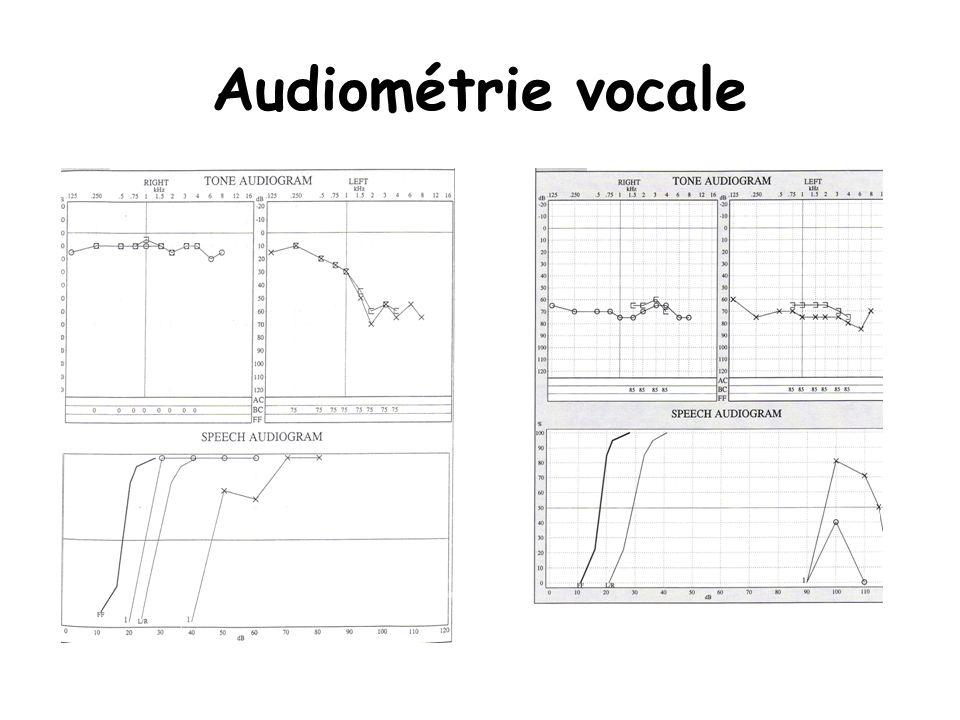 Audiométrie vocale