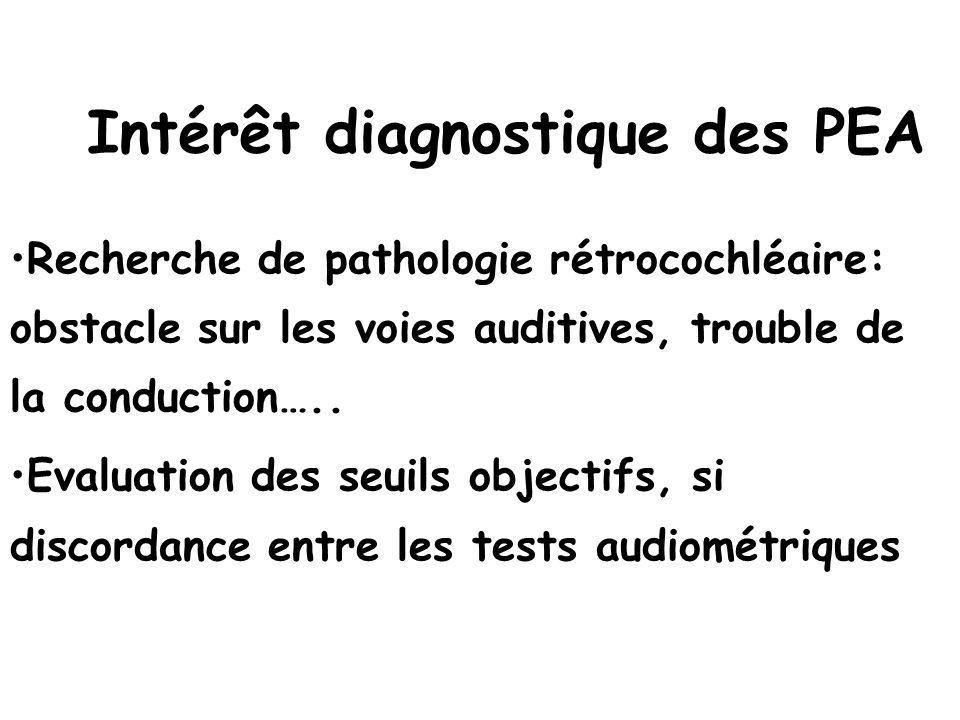 Intérêt diagnostique des PEA Recherche de pathologie rétrocochléaire: obstacle sur les voies auditives, trouble de la conduction….. Evaluation des seu