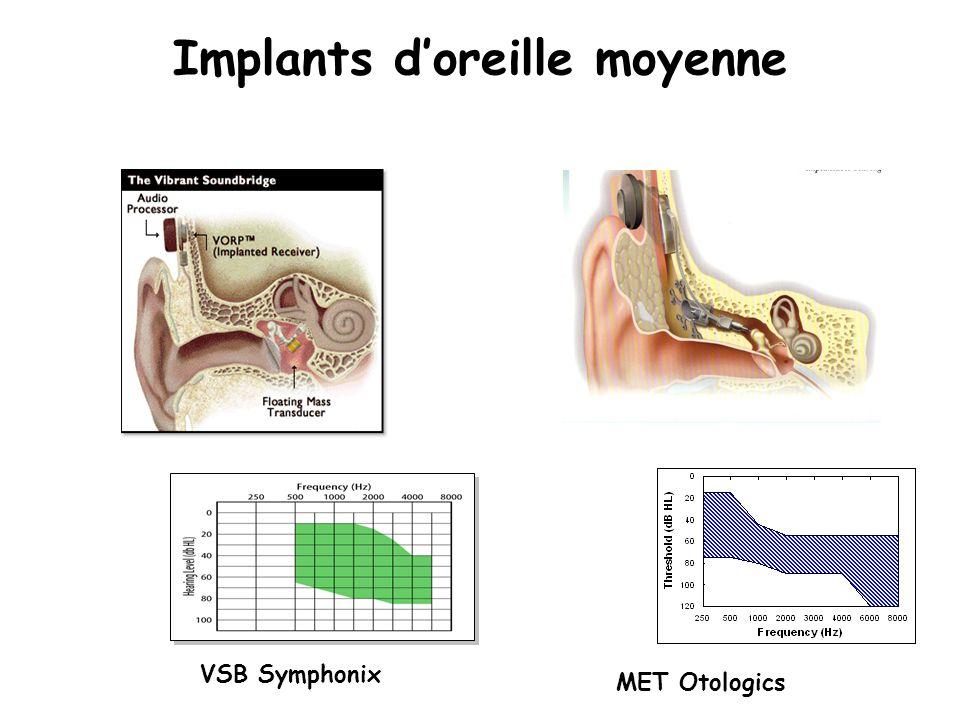 Implants doreille moyenne VSB Symphonix MET Otologics