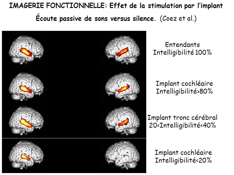 Implant cochléaire Intelligibilité<20% Implant cochléaire Intelligibilité>80% Entendants Intelligibilité 100% Implant tronc cérébral 20<Intelligibilit