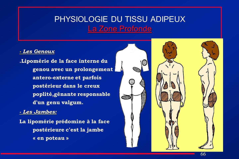 66 La Zone Profonde PHYSIOLOGIE DU TISSU ADIPEUX La Zone Profonde - Les Genoux.Lipomérie de la face interne du genou avec un prolongement antero-exter