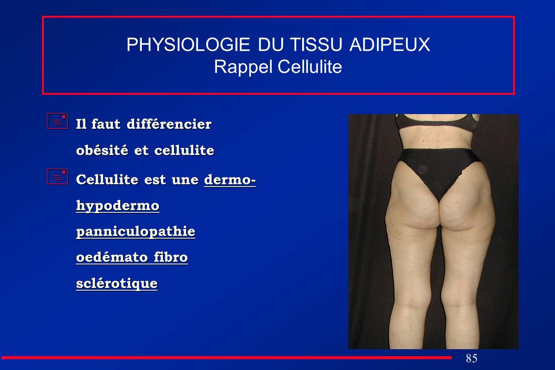 85 PHYSIOLOGIE DU TISSU ADIPEUX Rappel Cellulite Il faut différencier obésité et cellulite Il faut différencier obésité et cellulite Cellulite est une