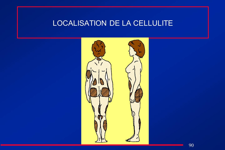 90 LOCALISATION DE LA CELLULITE