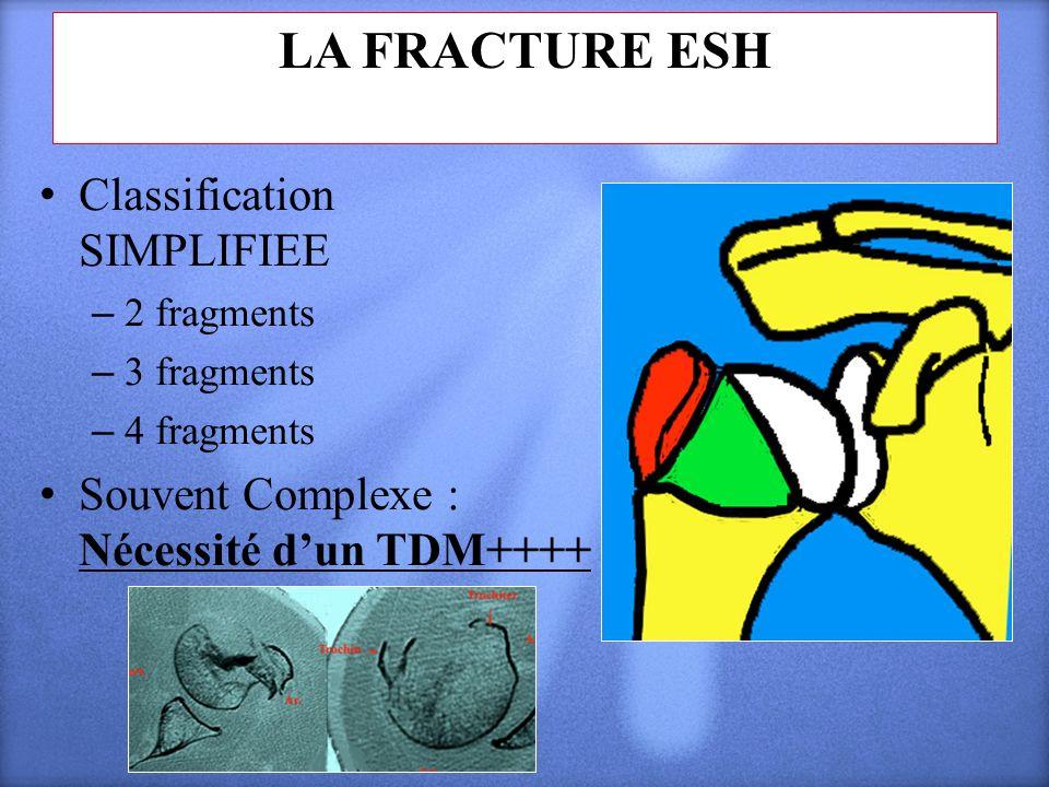 LA FRACTURE ESH Classification SIMPLIFIEE – 2 fragments – 3 fragments – 4 fragments Souvent Complexe : Nécessité dun TDM++++