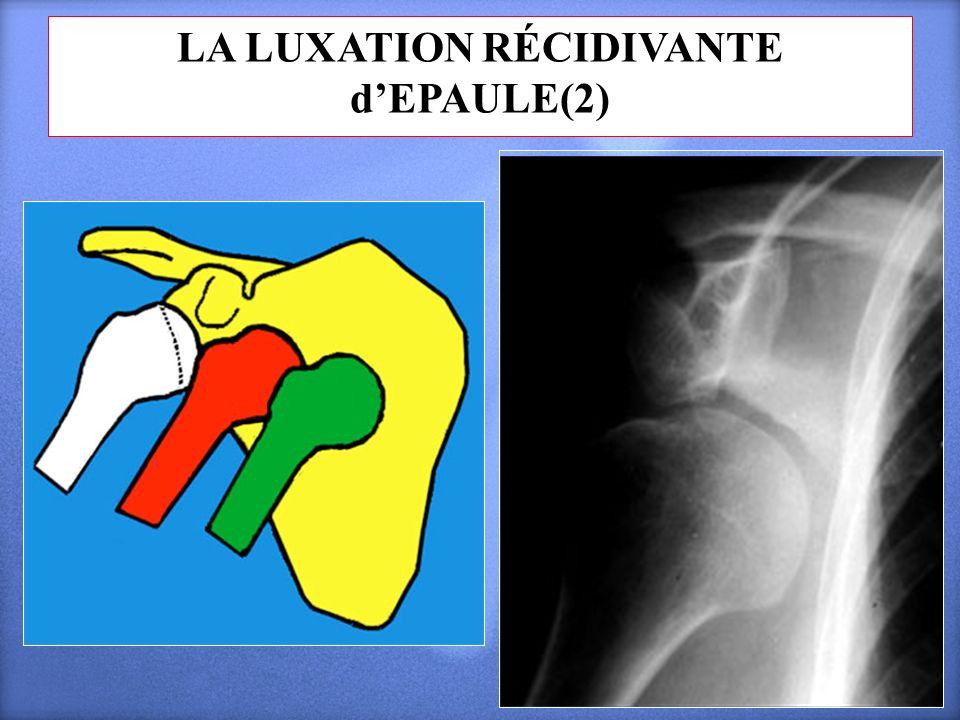 LA LUXATION RÉCIDIVANTE dEPAULE(2)