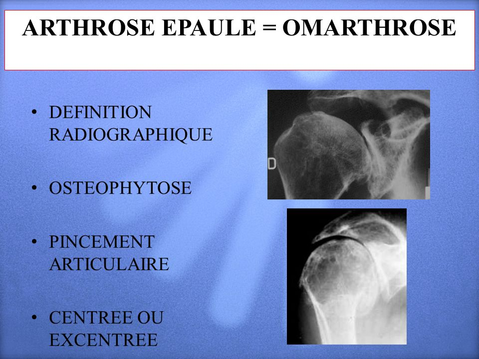 ARTHROSE EPAULE = OMARTHROSE DEFINITION RADIOGRAPHIQUE OSTEOPHYTOSE PINCEMENT ARTICULAIRE CENTREE OU EXCENTREE