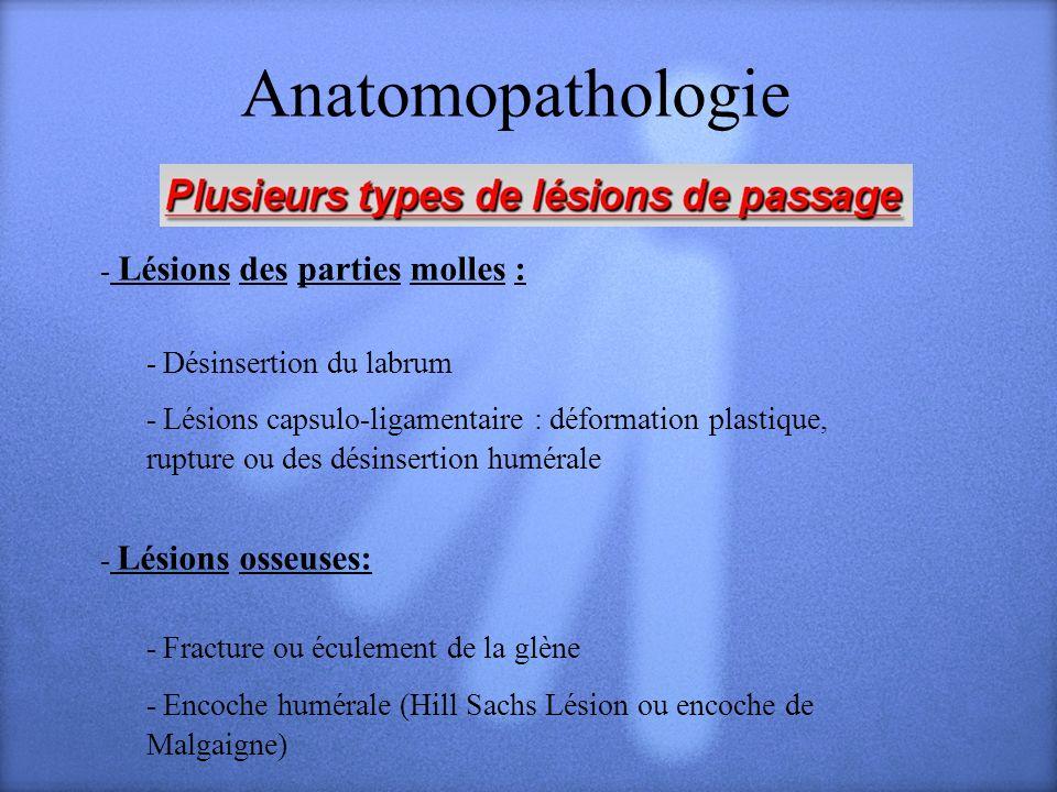 Anatomopathologie - Lésions des parties molles : - Désinsertion du labrum - Lésions capsulo-ligamentaire : déformation plastique, rupture ou des désin