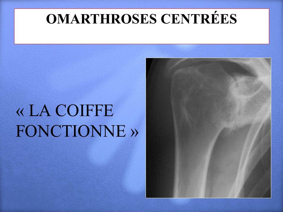 OMARTHROSES CENTRÉES « LA COIFFE FONCTIONNE »