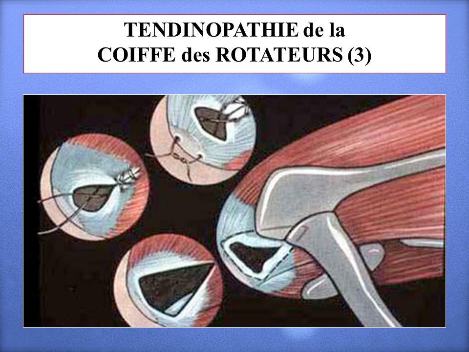 TENDINOPATHIE de la COIFFE des ROTATEURS (3)
