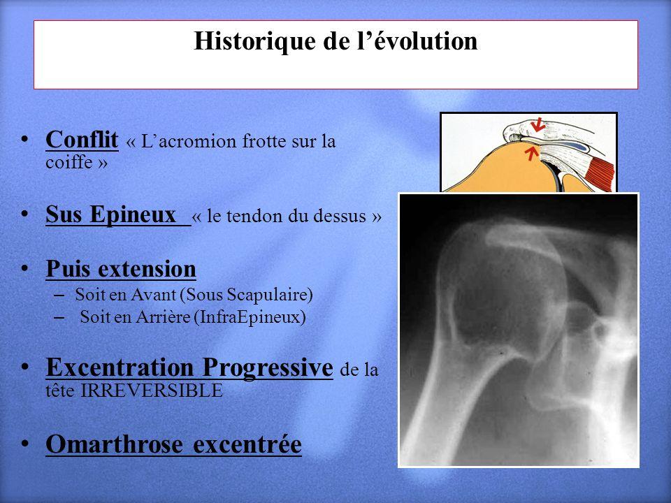 Historique de lévolution Conflit « Lacromion frotte sur la coiffe » Sus Epineux « le tendon du dessus » Puis extension – Soit en Avant (Sous Scapulair