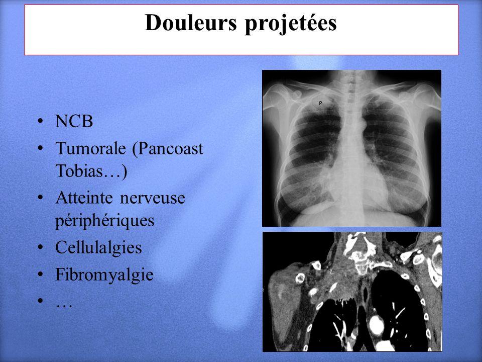Douleurs projetées NCB Tumorale (Pancoast Tobias…) Atteinte nerveuse périphériques Cellulalgies Fibromyalgie …