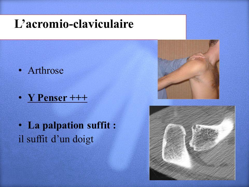 Lacromio-claviculaire Arthrose Y Penser +++ La palpation suffit : il suffit dun doigt