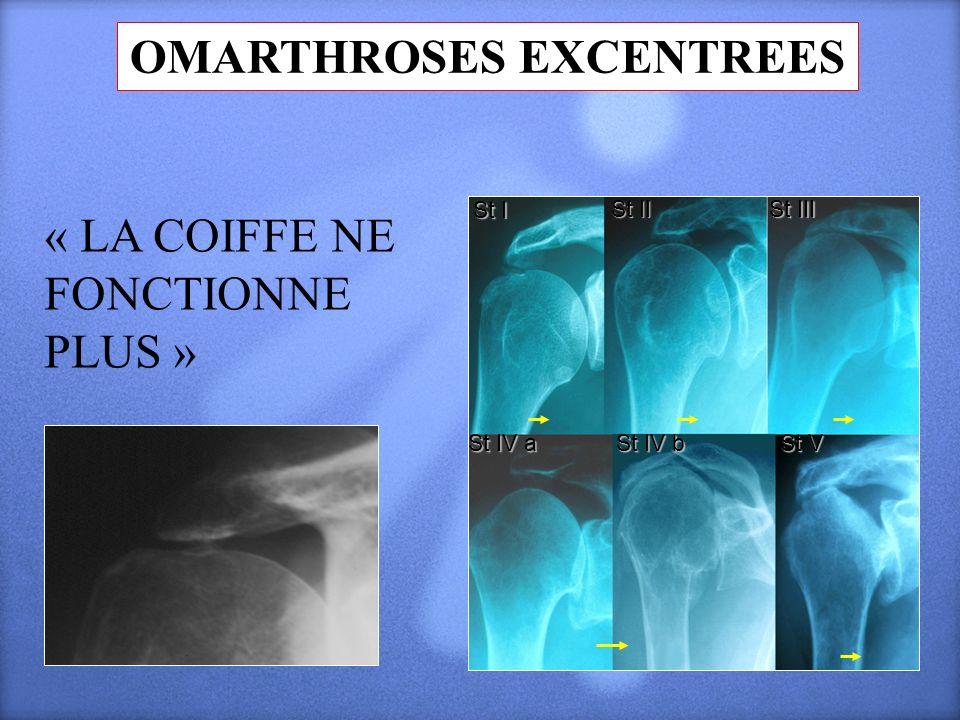 St I St II St III St IV a St IV b St V OMARTHROSES EXCENTREES « LA COIFFE NE FONCTIONNE PLUS »