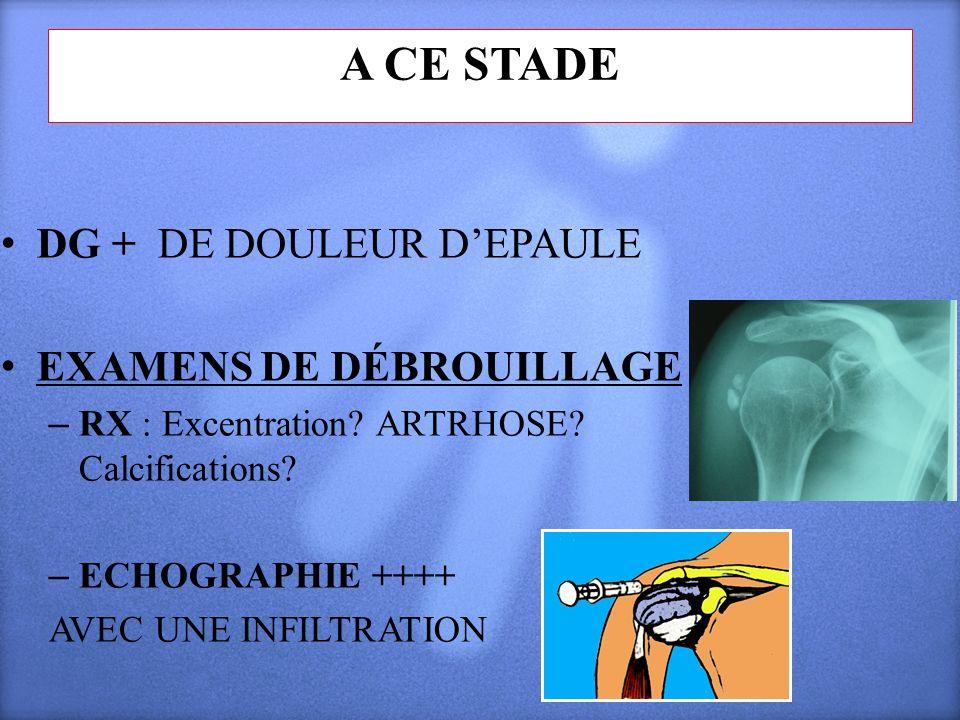 A CE STADE DG + DE DOULEUR DEPAULE EXAMENS DE DÉBROUILLAGE – RX : Excentration? ARTRHOSE? Calcifications? – ECHOGRAPHIE ++++ AVEC UNE INFILTRATION