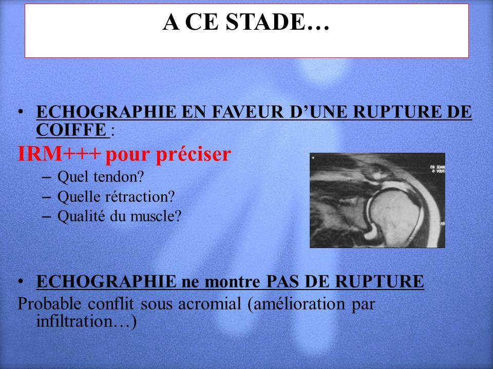 A CE STADE… ECHOGRAPHIE EN FAVEUR DUNE RUPTURE DE COIFFE : IRM+++ pour préciser – Quel tendon? – Quelle rétraction? – Qualité du muscle? ECHOGRAPHIE n