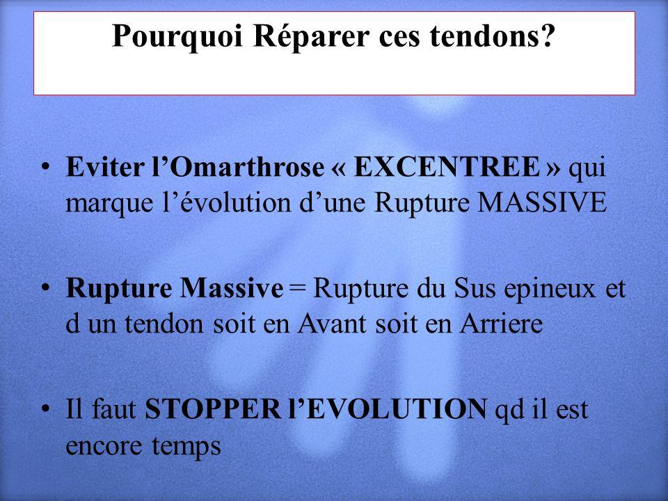 Pourquoi Réparer ces tendons? Eviter lOmarthrose « EXCENTREE » qui marque lévolution dune Rupture MASSIVE Rupture Massive = Rupture du Sus epineux et