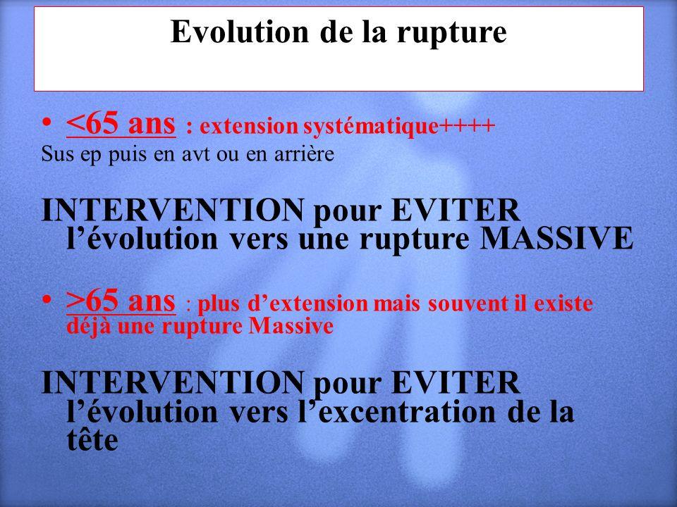 Evolution de la rupture <65 ans : extension systématique++++ Sus ep puis en avt ou en arrière INTERVENTION pour EVITER lévolution vers une rupture MAS