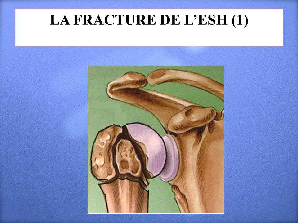LA FRACTURE DE LESH (1)