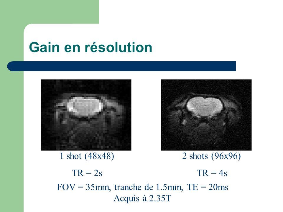 Gain en résolution 1 shot (48x48) TR = 2s 2 shots (96x96) TR = 4s FOV = 35mm, tranche de 1.5mm, TE = 20ms Acquis à 2.35T