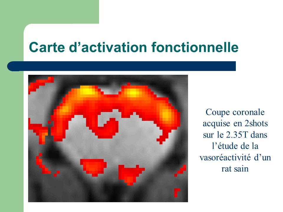 Carte dactivation fonctionnelle Coupe coronale acquise en 2shots sur le 2.35T dans létude de la vasoréactivité dun rat sain