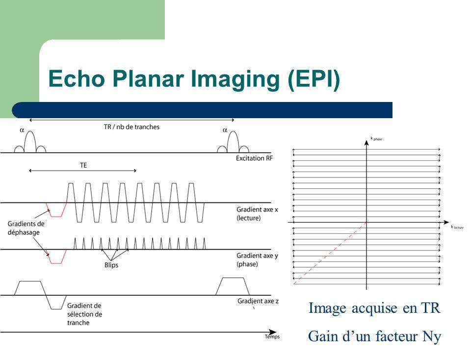 Echo Planar Imaging (EPI) Image acquise en TR Gain dun facteur Ny