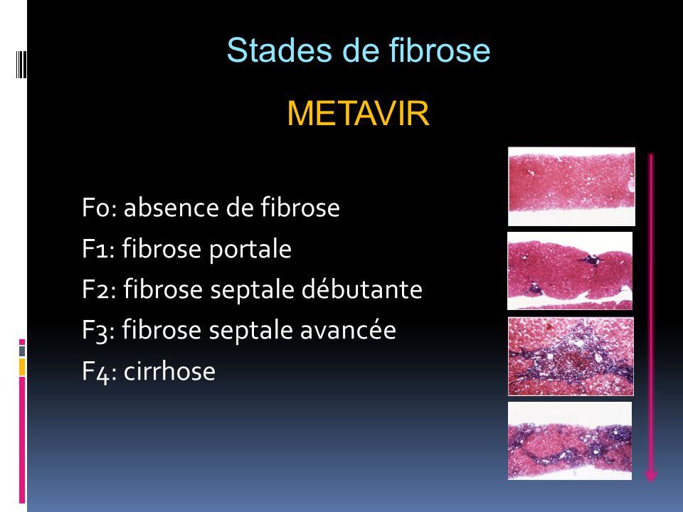 F0: absence de fibrose F1: fibrose portale F2: fibrose septale débutante F3: fibrose septale avancée F4: cirrhose Stades de fibrose METAVIR