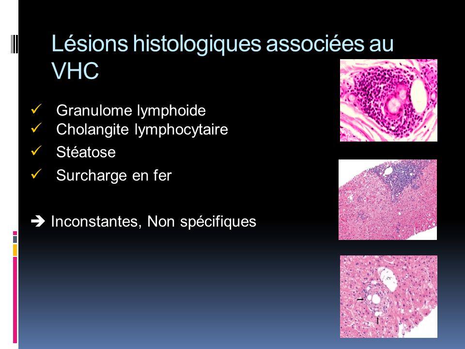 Lésions histologiques associées au VHC Granulome lymphoide Cholangite lymphocytaire Stéatose Surcharge en fer Inconstantes, Non spécifiques