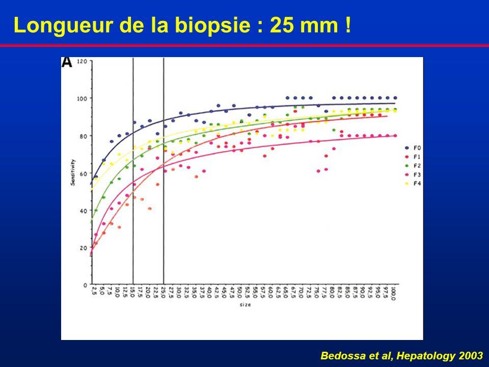 Longueur de la biopsie : 25 mm ! Bedossa et al, Hepatology 2003