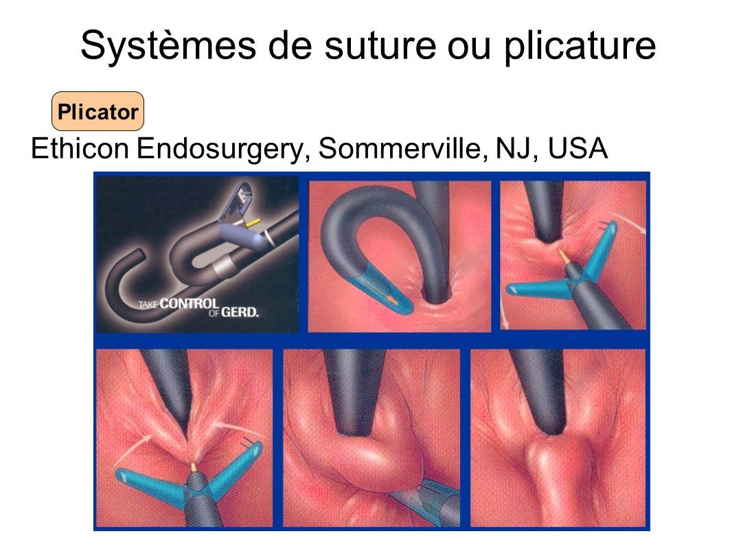 Systèmes de suture ou plicature Ethicon Endosurgery, Sommerville, NJ, USA Plicator