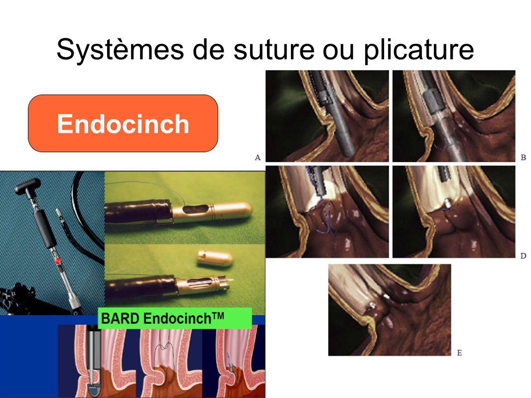 Long term failure of endoscopic gastroplication (EndoCinch) I Schiefke, A Zabel-Langhennig, S Neumann, J Feisthammel, J Moessner, K Caca Systèmes de suture ou plicature Endocinch