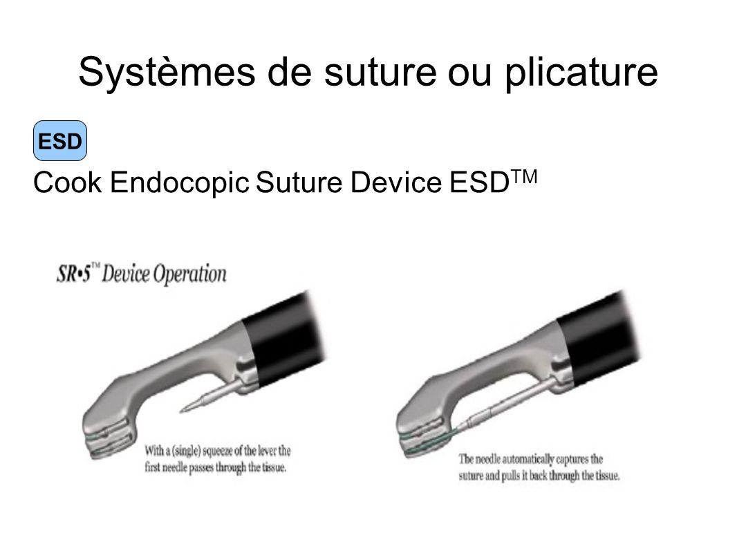 Systèmes de suture ou plicature ESD